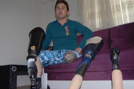 Gazinin protez bacağına haciz şoku!